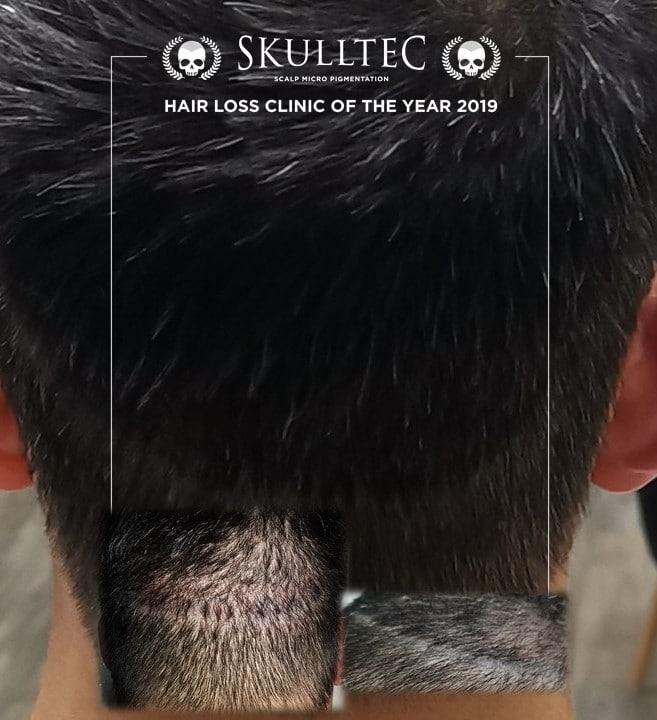 Scalp micropigmentation scar cover up