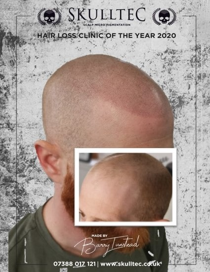 Scalp micropigmentation livingston