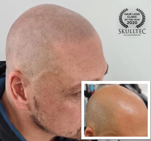 Scalp micropigmentation east kilbride client